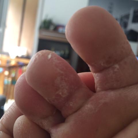 Fuß  Bild  - (Körper, Haut, Füße)