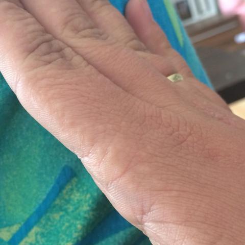 Hand Bild  - (Körper, Haut, Füße)