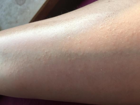 Unterarm - (Haut, blaeschen)
