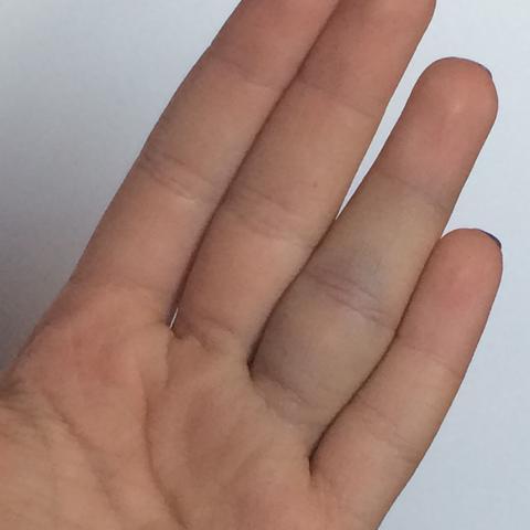 Kleine Frage Arzt ja nein 🙈? (Verletzung, Finger)