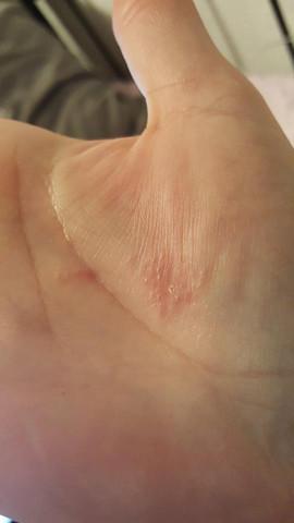 kleine juckende punkte handinnenfläche - was könnte es sein? (arzt
