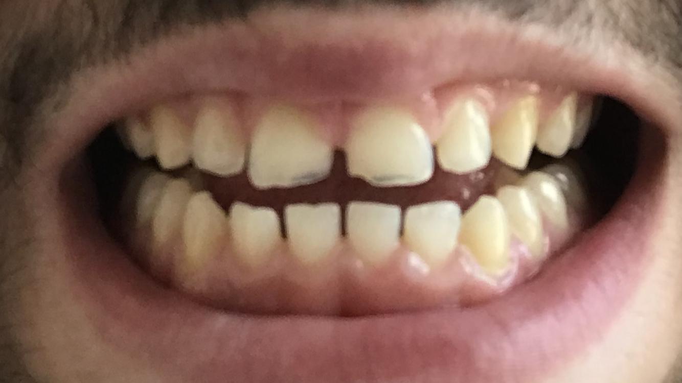 Viele Zähne