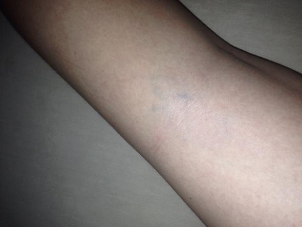 Hier mein Bein  - (Sport, Ernährung, Schmerzen)