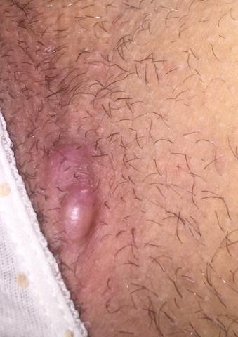 Große rote Beule auf Penis