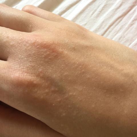 So sieht es an meine rechten Hand aus. Auf meiner linken Hand sind nur wenige. - (Sonne, Pickelchen, Handrücken)