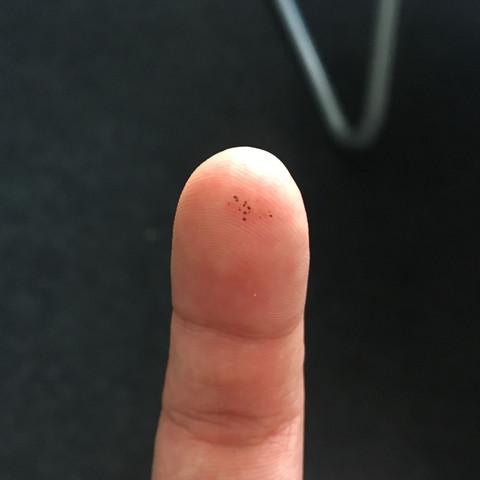 Dem schwarze flecken penis auf Was sind