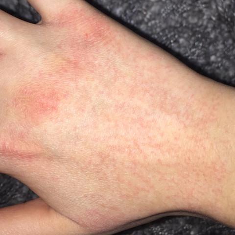 Rote Punkte - (Gesundheit, Allergie, Ausschlag)