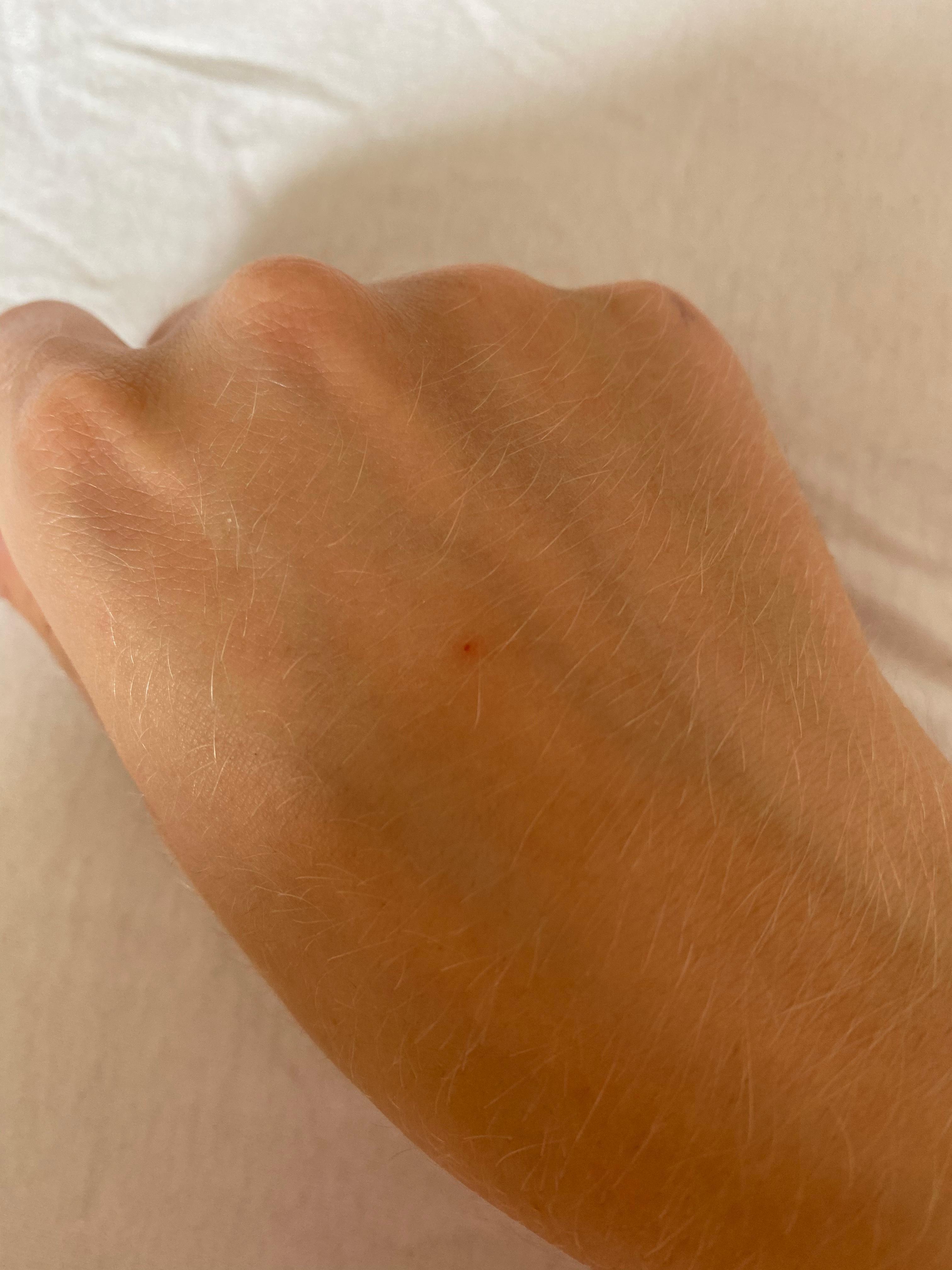 Kleine rote Punkte auf der Haut die nicht abheilen
