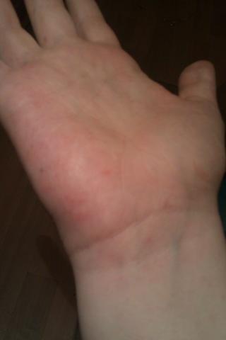 kleine wasserbläschen auf der hand innenfläche (blaeschen)