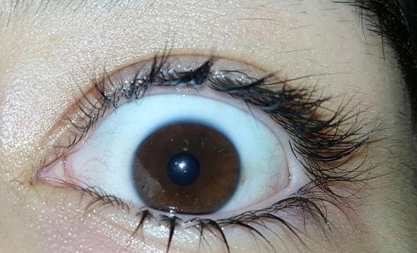 Kleiner Gelber Fleck Nahe Der Iris Gesundheit Krankheit Augen