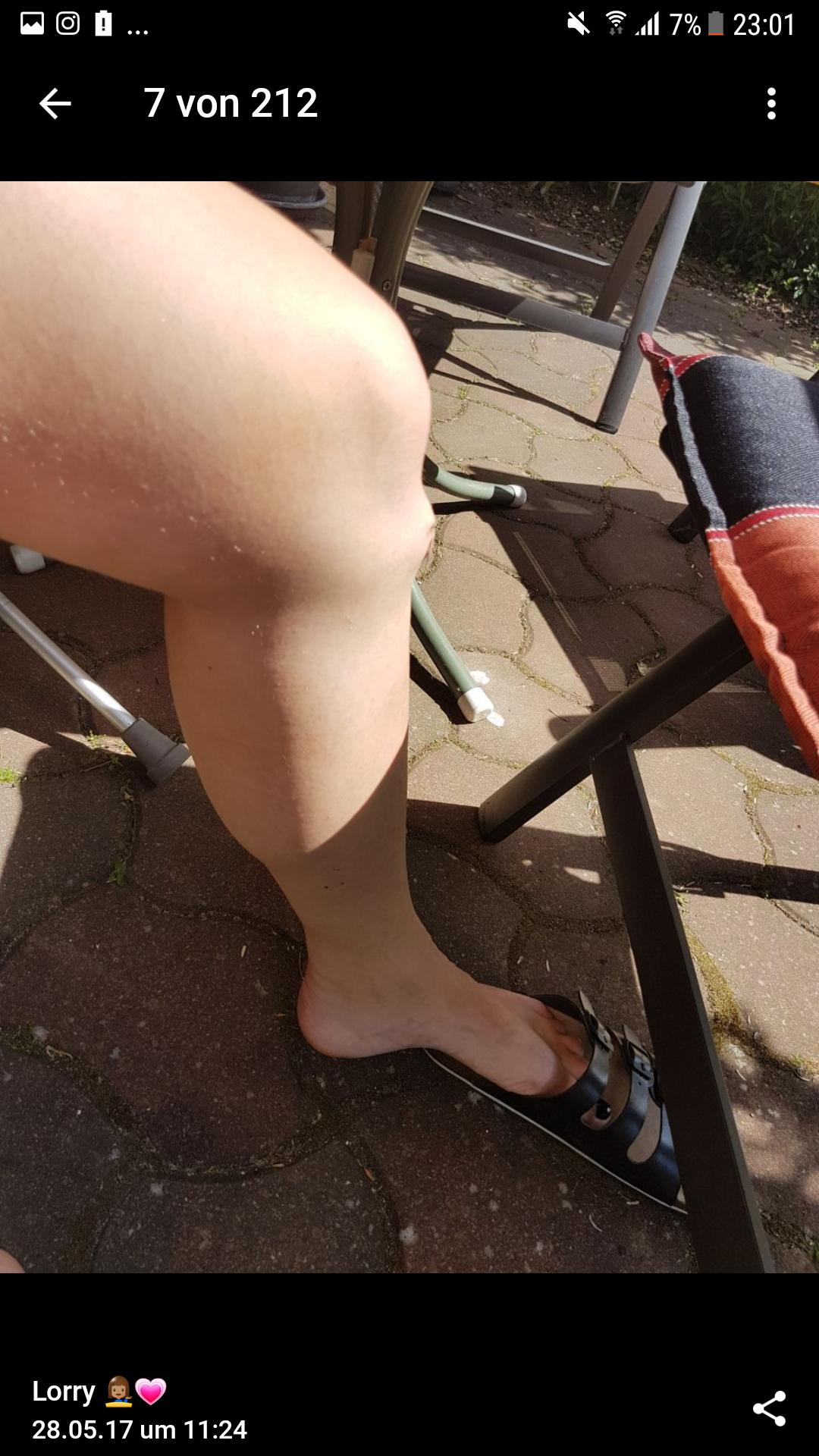 Knie Op überbein jetzt noch schlimmer schienbein ende