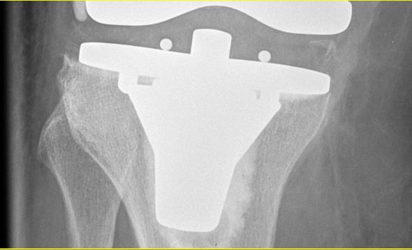 Kniegelenk2-4zoom - (Knie, orthopäde, Sprunggelenk)