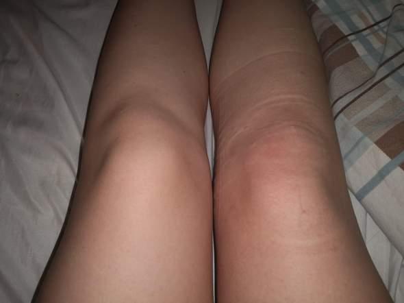 Knieschmerzen hören nicht auf?