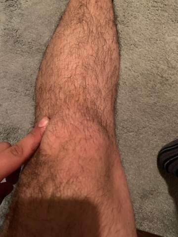Knieschmerzen seit einigen Monaten oder sogar Jahren?