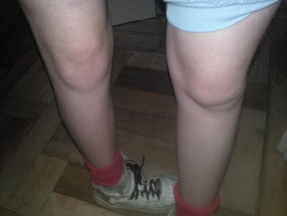 Mein Unterschenkel zeigt zur Seite meine Kniescheibe zeigt nach vorne - (Arzt, Schmerzen, Krankenhaus)
