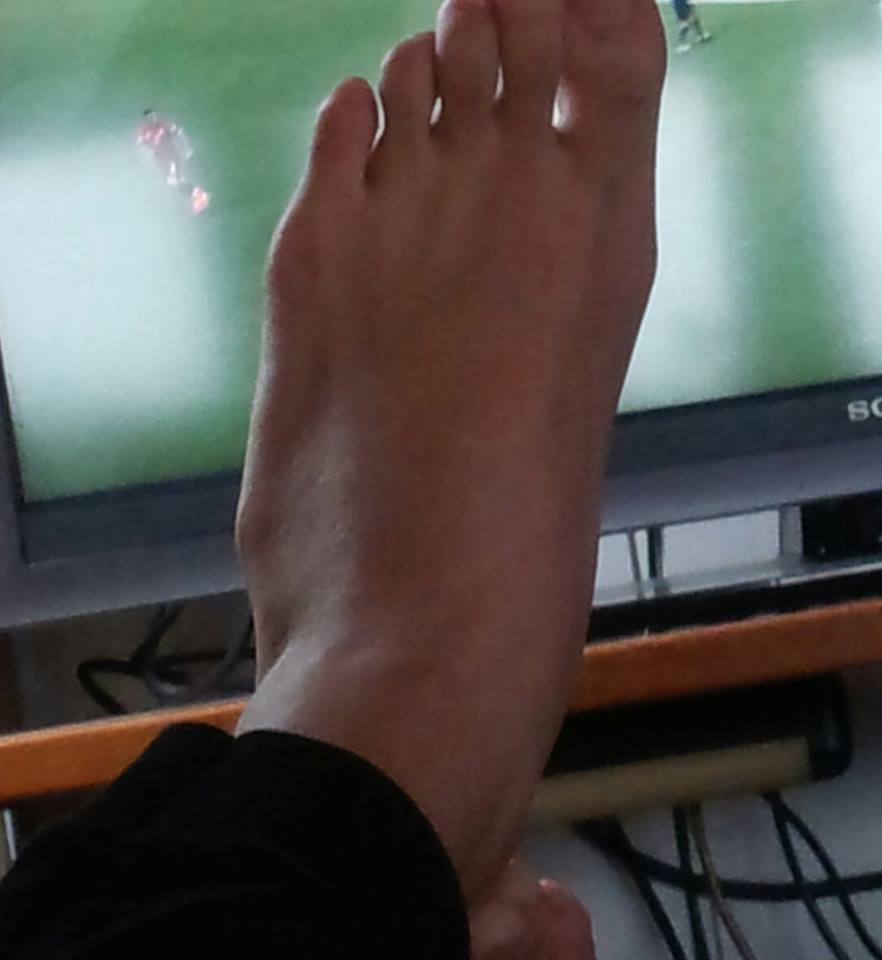 Knochen am Fuß. Ist das ein Überbein? (Medizin, Füße)