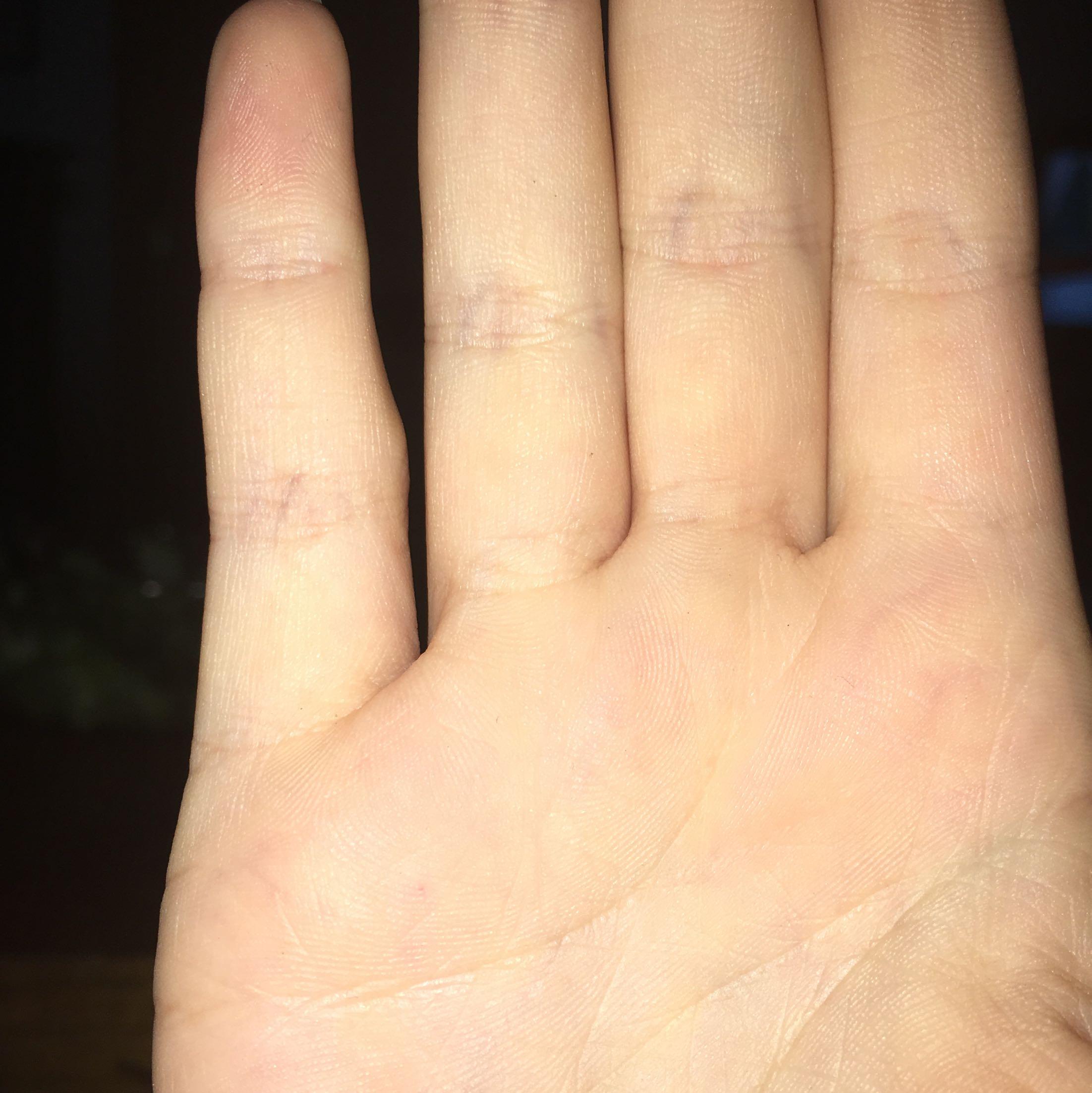 Knubbel am Gelenk vom kleinen Finger? (Verletzung, Hand)