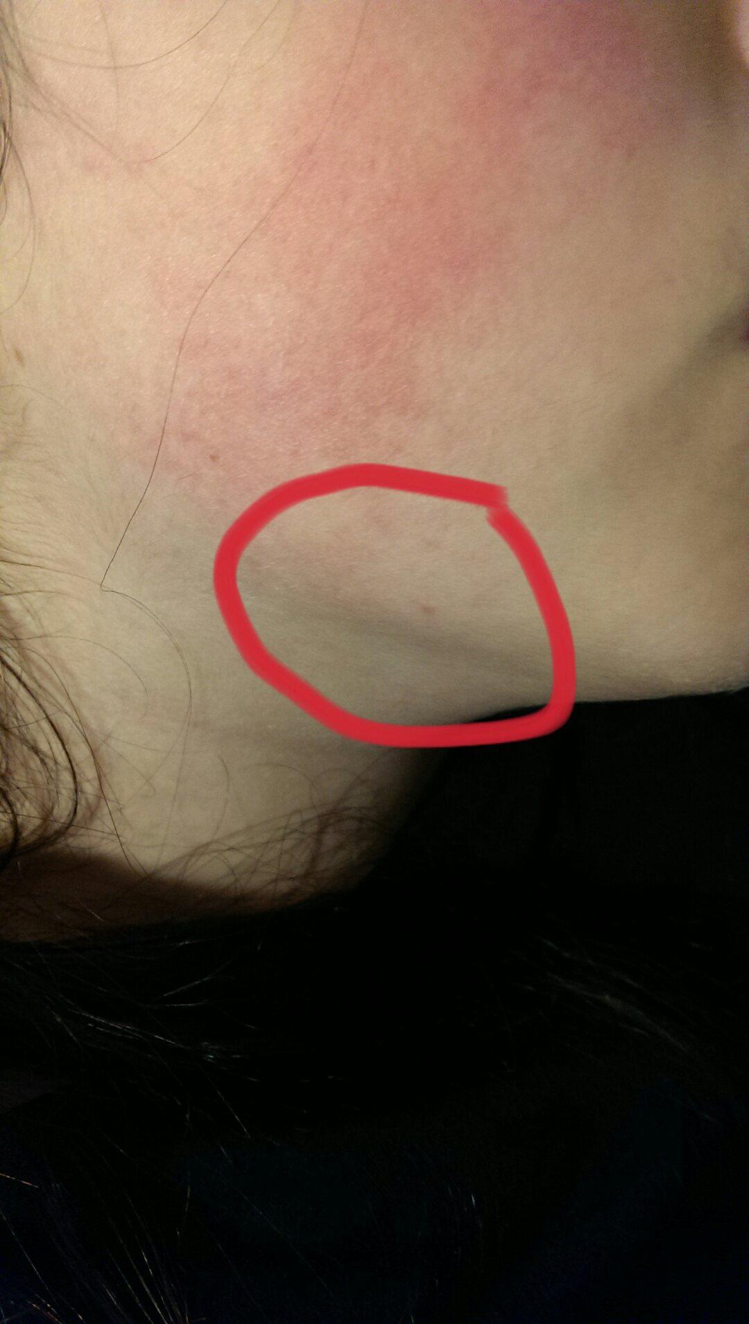Knubbel am unterkiefer, was kann das sein :(? (Gesundheit