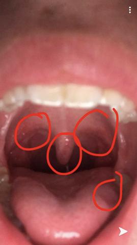 Den weiße punkte halsschmerzen auf mandeln Was ist