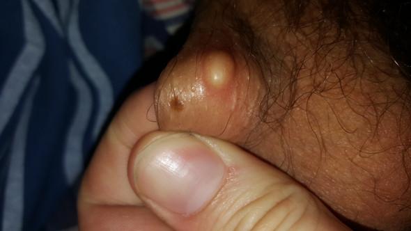 Haut knubbel am hodensack Knubbel unter
