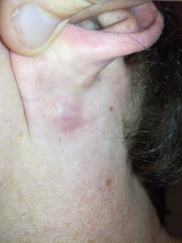Knubel hinterm Ohr? (Medizin)