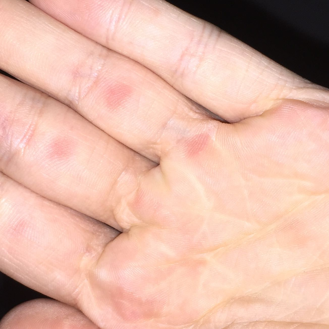 kömische rote punkte auf der linken hand, unterhalb der finger