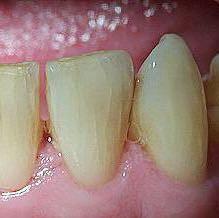 Im schneidezahn riss Postorthodontic lower