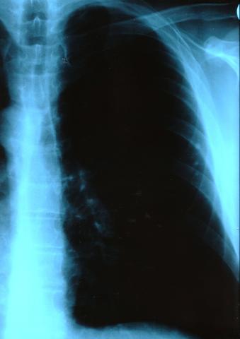 Lunge - (Lunge, Röntgenbild)