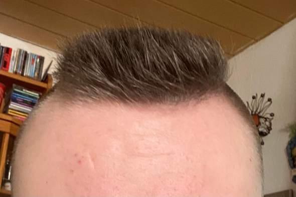 Könnte heute Nacht nicht schlafen und habe meinen Kopf rasiert?
