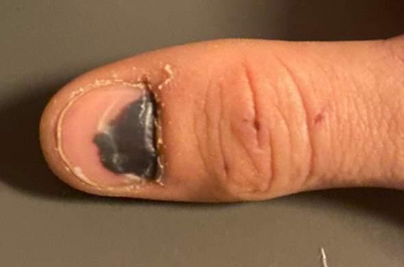 Könnte mir dieser Nagel ausfallen?