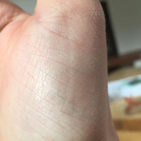Ader an der Hand - (Hand, Ader)