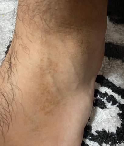 Komische braune  Flecken am Fuß?