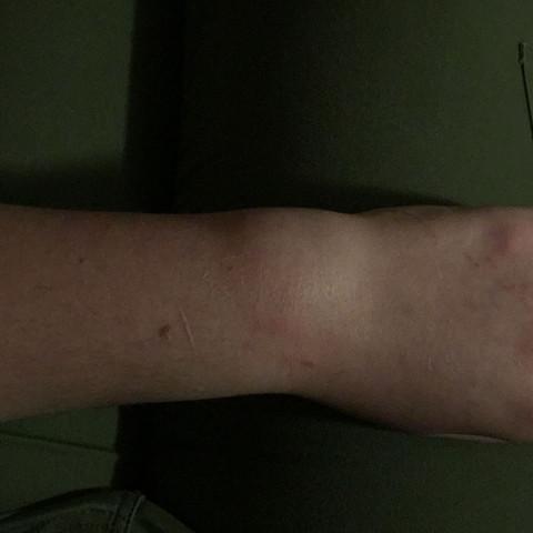 Handgelenk direkt nach dem Sturz  - (Gesundheit, Medizin, Arzt)