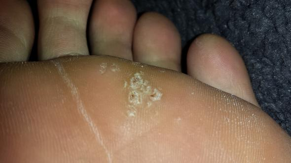 Komische Hautstellen - (Haut, Warzen am Fuß)