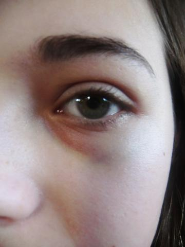 Die Wassergeschwulst der Augenbraue des Auges