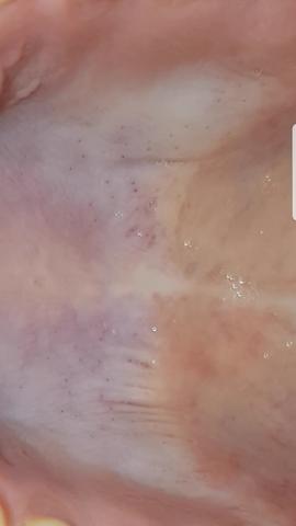 Hier das Bild - (Krankheit, Virus, Mund)