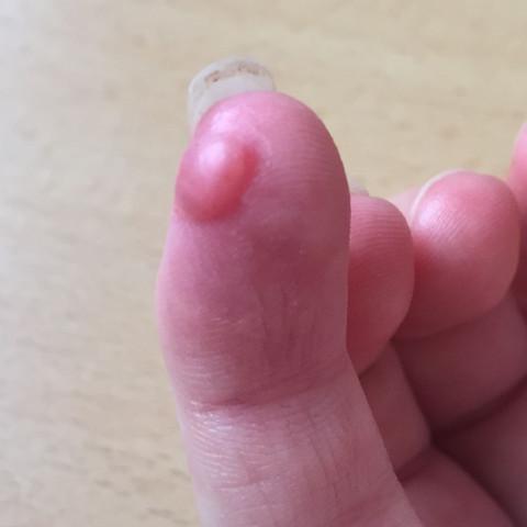 Hier mein kleiner Finger  - (Heilung, Schnittwunde, BlasBlase)