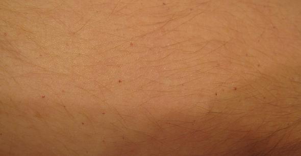rote Punkte (Oberarm) - (Gesundheit, Rote Hautflecken)