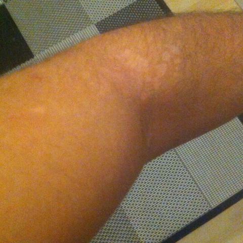Bild1 - (Haut, Flecken, weißestellen)