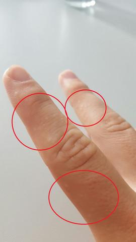 Komischer Ausschlag an den Fingern? (Finger)