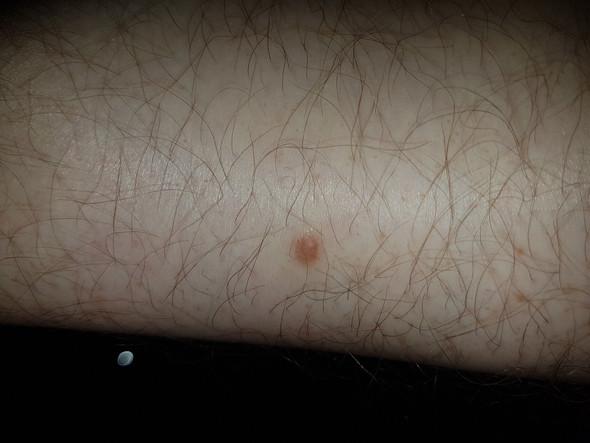Fleck - (Medizin, Haut, Flecken)