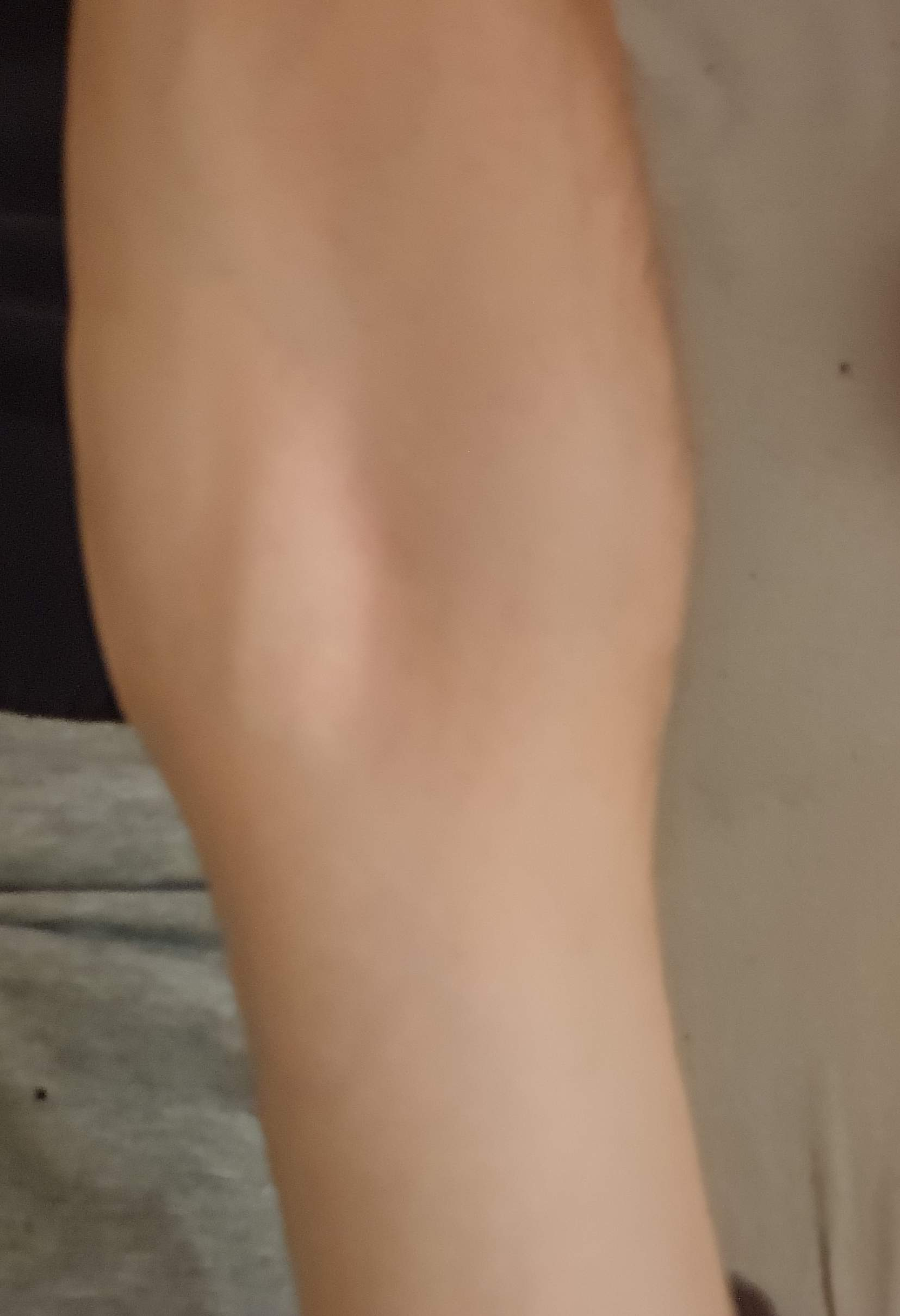 Oberarm muskel am knubbel Muskelfaserriss des
