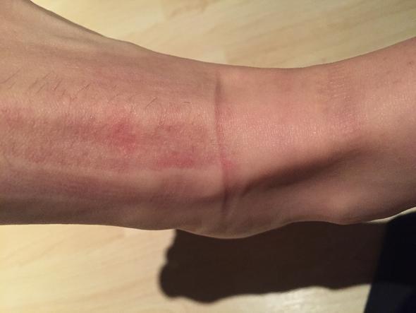 Auf wassereinlagerung abdrücke der haut Geschwollene Beine