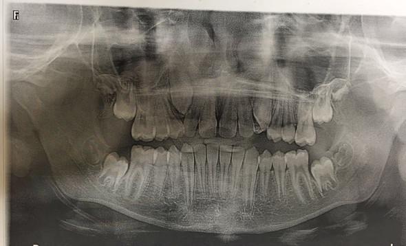 Zahn ziehen nach kieferknochenentzündung Chronische Kieferknochenentzündung