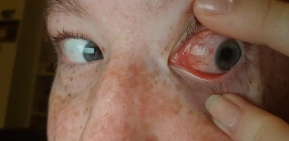kontaktlinse geht nicht mehr raus
