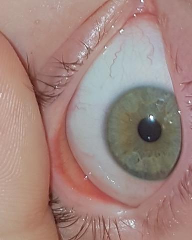 Kann man da was erkennen? Oder ist sie einfach garnicht in mein Auge rein? - (Gesundheit und Medizin, Kontaktlinsen, verschwunden)