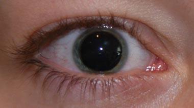 kontaktlinsen mit gro en pupillen gesundheit beauty augen. Black Bedroom Furniture Sets. Home Design Ideas