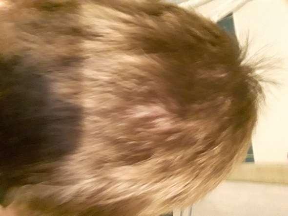 Kopfhaut Sichtbar Habe Ich Haarausfall Haare Hilflos