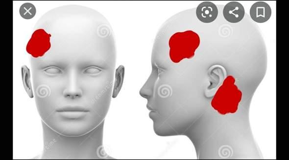 Kopfschmerzen seit drei Tagen auf linker Seite?