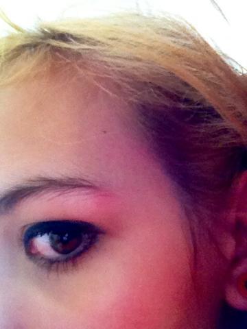 Direkt am äußeren Ende der Augenbraue zu sehen - (Kopfschmerzen, Übelkeit)